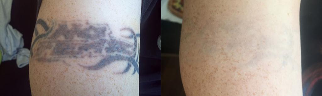 Før og efter - tatoveringsfjernelse
