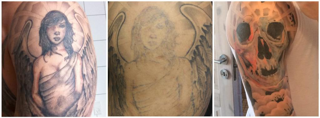 før og efter billede af en cover-up tatovering