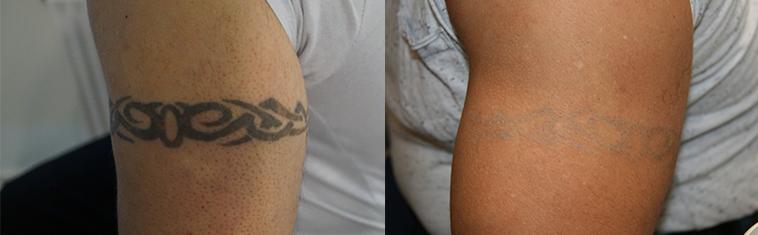 Fjern tatovering Galleri før og efter