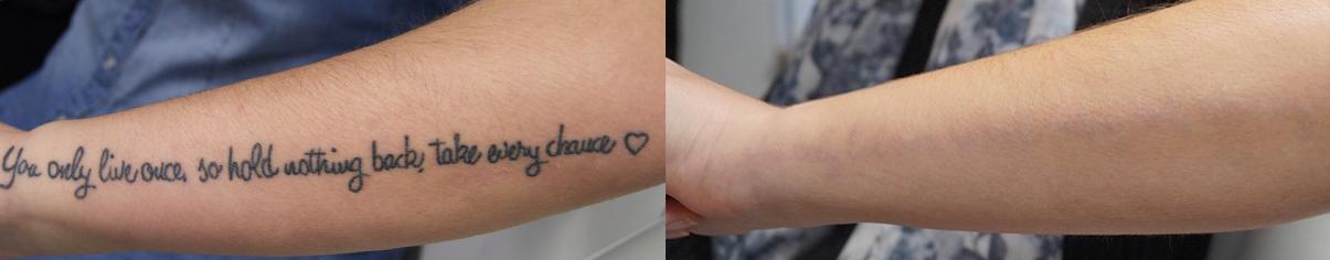 Laserbehandling før og efter