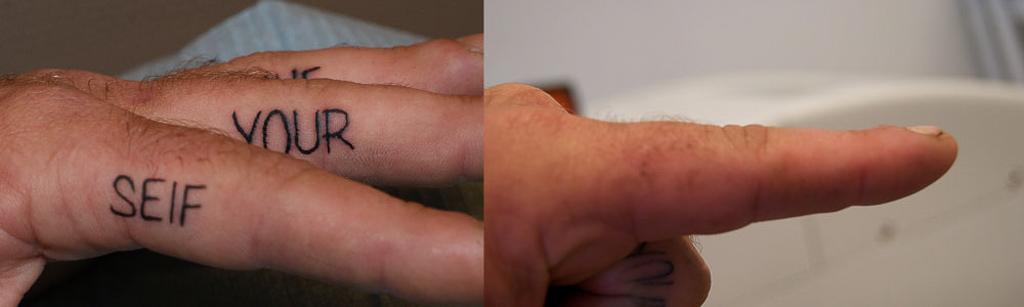 fjern tatovering før og efter