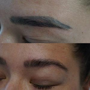 Før og efter billede 1 behandling