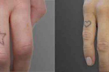 Før og efter billede 8 behandlinger